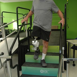 emg-powered-prosthetic-legs