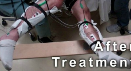 paralized-patients-take-small-steps-ucla-Legs1_web_1024