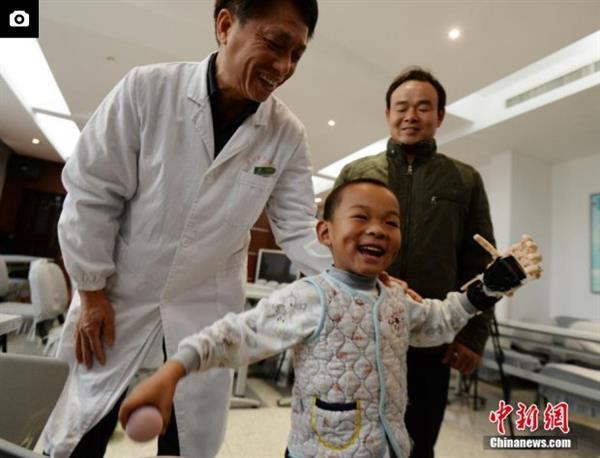 first-burn-victim-3d-prosthetic-china-five-year-old-boy