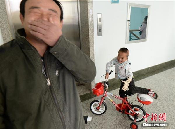 first-burn-victim-3d-prosthetic-china-five-year-old-boy2