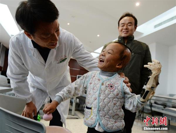 first-burn-victim-3d-prosthetic-china-five-year-old-boy3