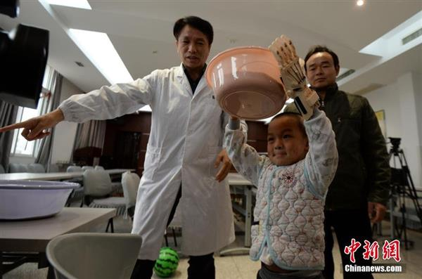 first-burn-victim-3d-prosthetic-china-five-year-old-boy4