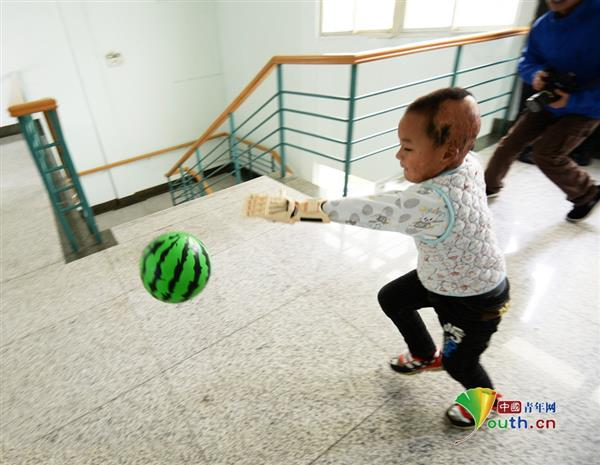 first-burn-victim-3d-prosthetic-china-five-year-old-boy5
