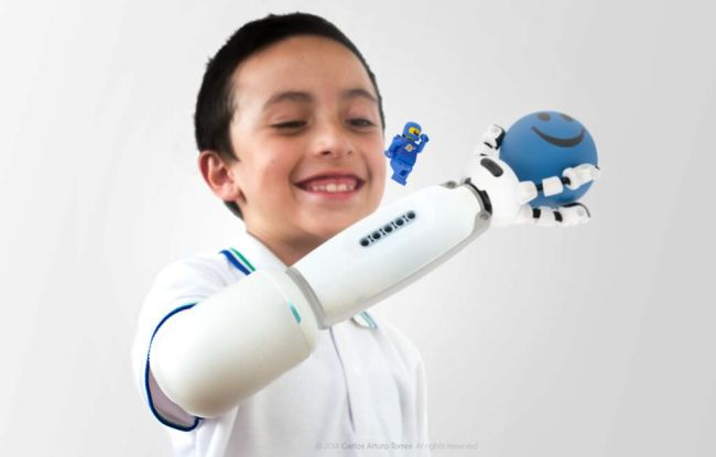 IKO-prosthetic-system-by-Carlos-Arturo-Torres-from-the-UMEA-Institute-of-design