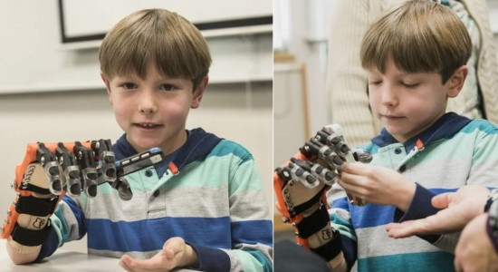 Lucas-Abraham-3D-printed-bionic-hand_4