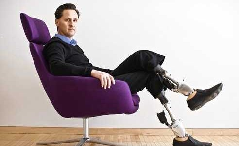 mit-professor-shows-us-his-incredible-bionic-prosthetics-that-move-like-real-legs