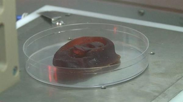 uk-hospital-first-3d-bioprinted-noses-ears-human-cells4
