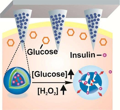 insulin-delivery-patch
